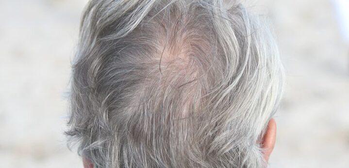Arti Mimpi Rambut Beruban Menurut Psikolog dan Primbon Jawa