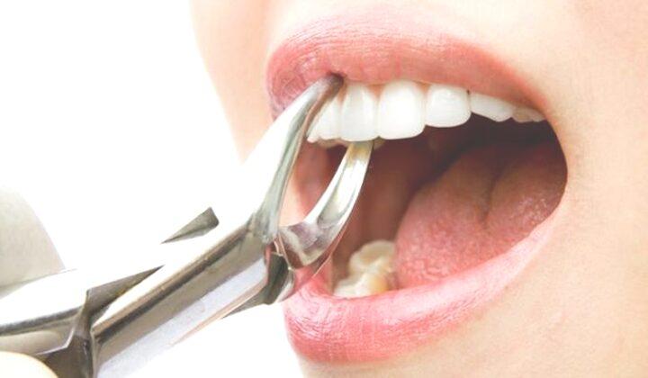 Arti Mimpi Mencabut Gigi Menurut Primbon Jawa dan Psikolog
